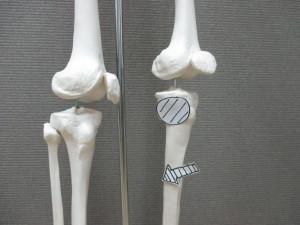 膝痛とふくらはぎ