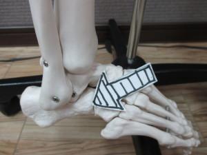 足首のガングリオン