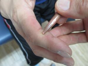 指先のしびれ(2)