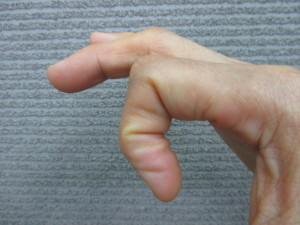 指先のしびれ(1)
