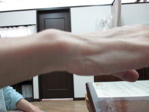 手首の歪み