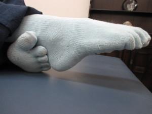 股関節の痛み(3)
