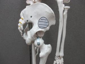 股関節の痛み(1)