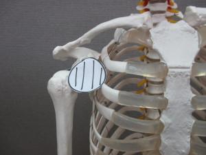 腰痛・後ろに反らすと痛い(2)