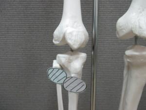 膝の痛みと股関節(1)
