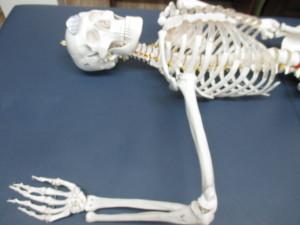 頭痛と肩関節の亜脱臼(2)
