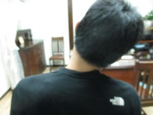 肩こりと肩関節の脱臼(1)