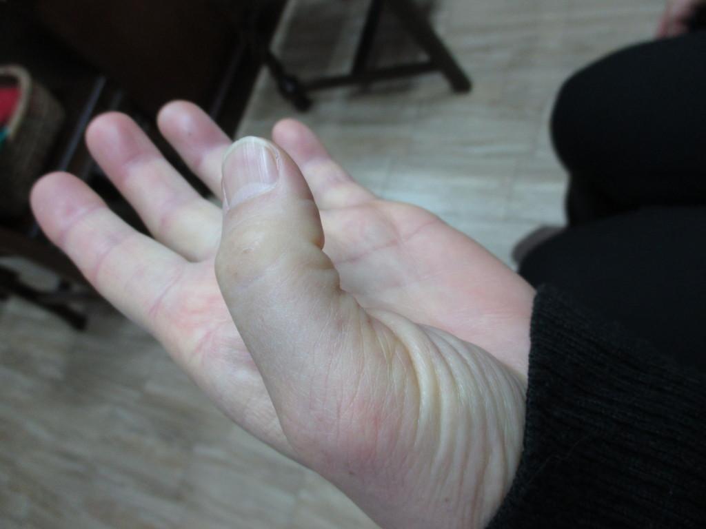 親指が曲がらない腱鞘炎