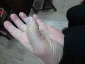 曲がらない指(1)