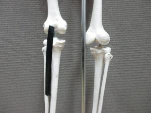 膝の後ろが痛い(1)