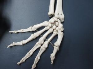 腱鞘炎・ドケルバン病の臨床例(1)