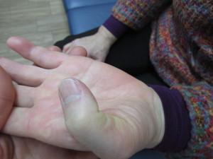 親指が曲がりました
