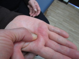 中指のばね指