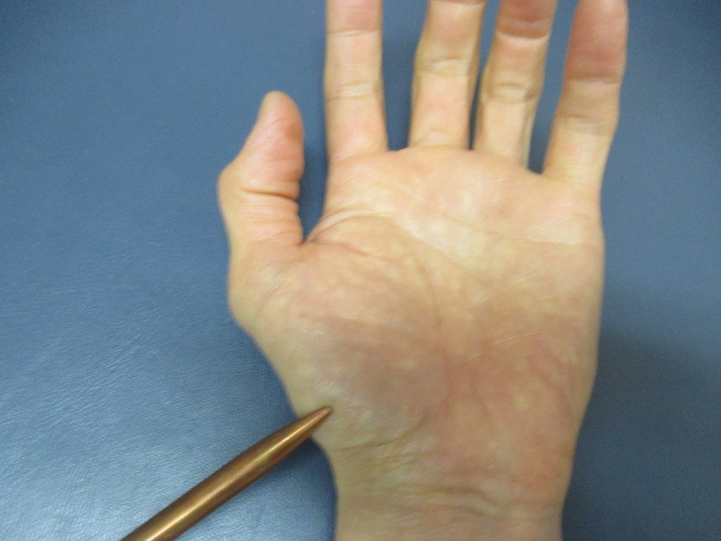 腱鞘炎・親指の付け根が痛い