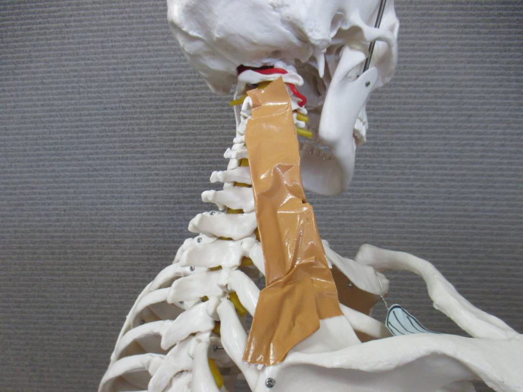 首を右にねじると右の首の付け根が痛い肩こり