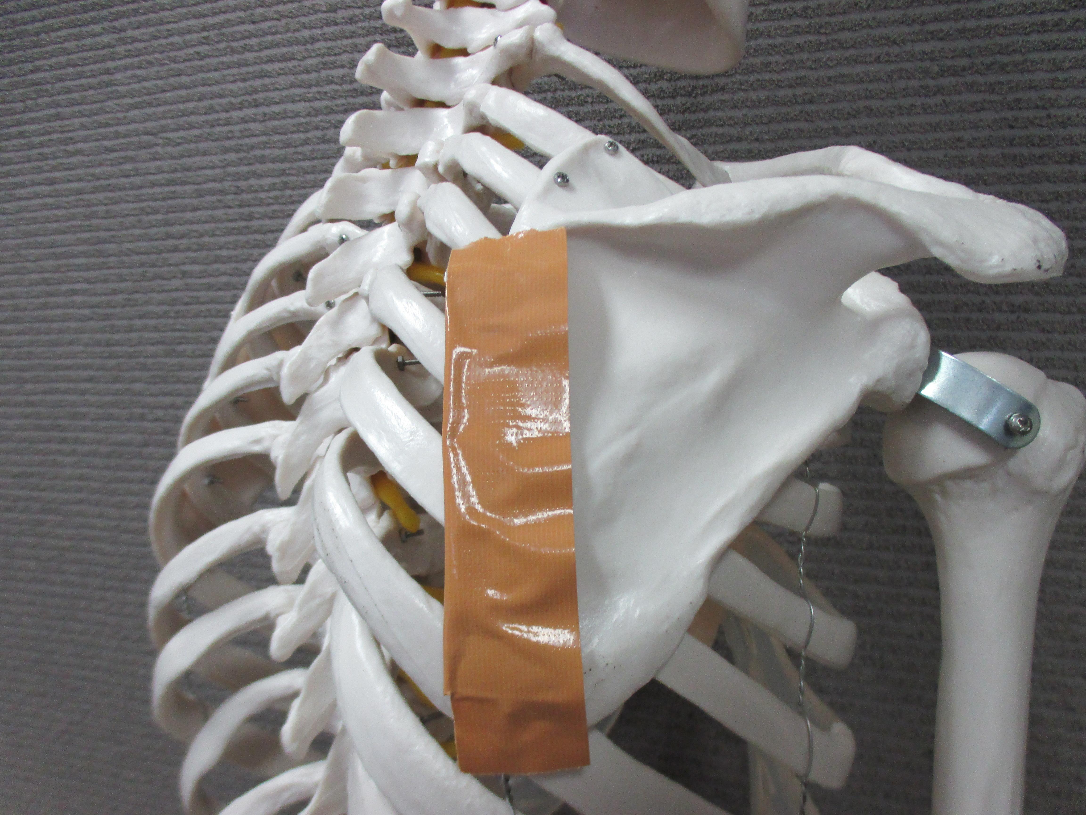 肩甲骨の内側が痛くて苦しい肩こり