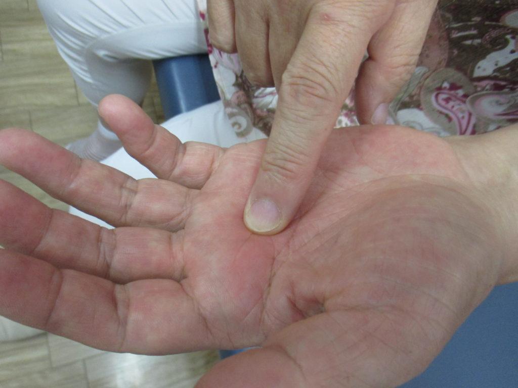 中指の中手骨を整体する