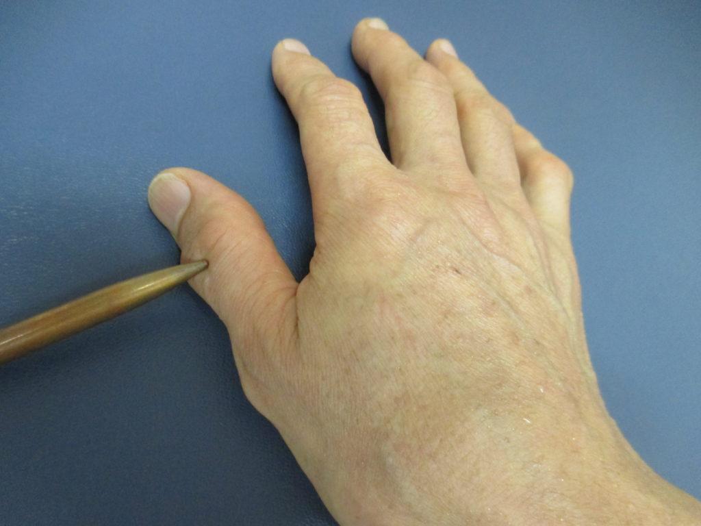 腱鞘炎で親指が痛い