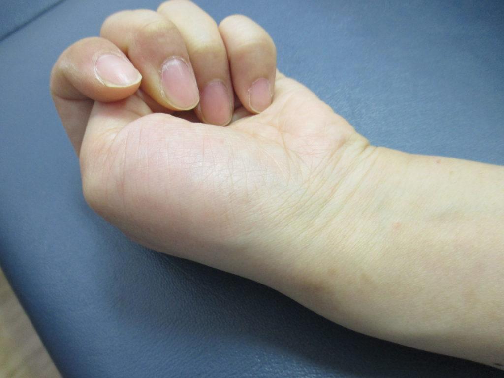 ドケルバン病と腕の筋肉