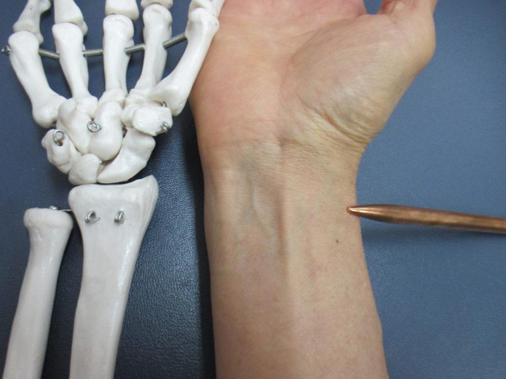 ドケルバン病と腕橈骨筋