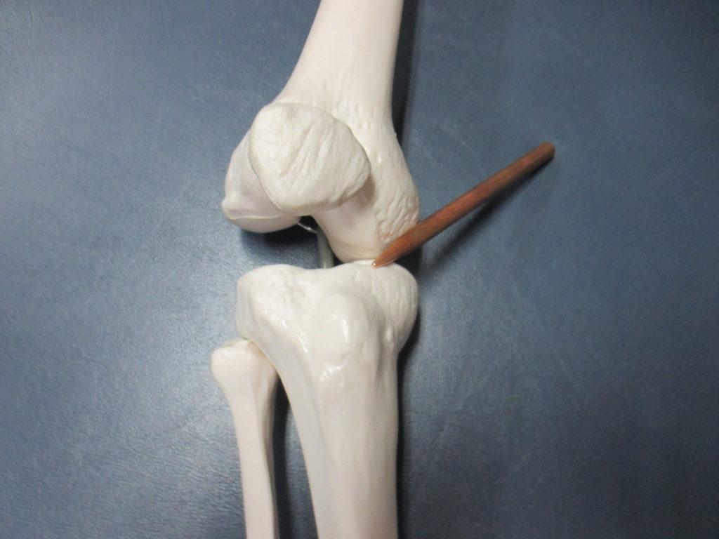 変形性膝関節症でしゃがむと膝の内側が痛い