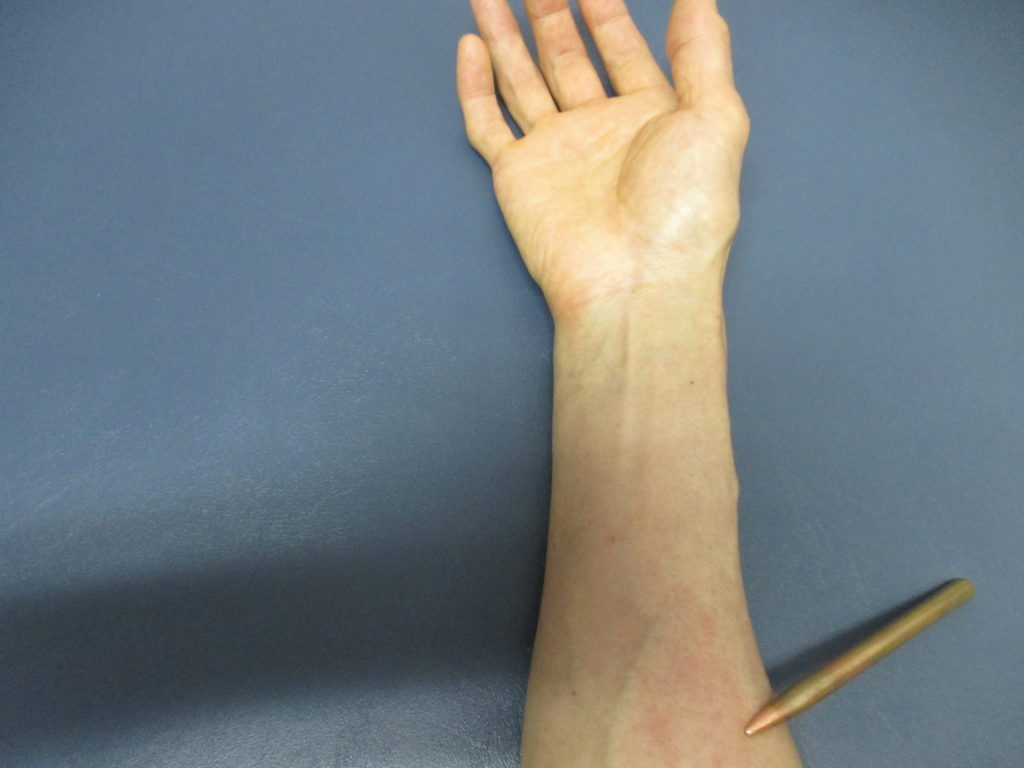 腱鞘炎と前腕の筋肉