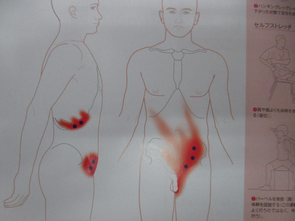 鼠蹊部・股関節の内側の痛み