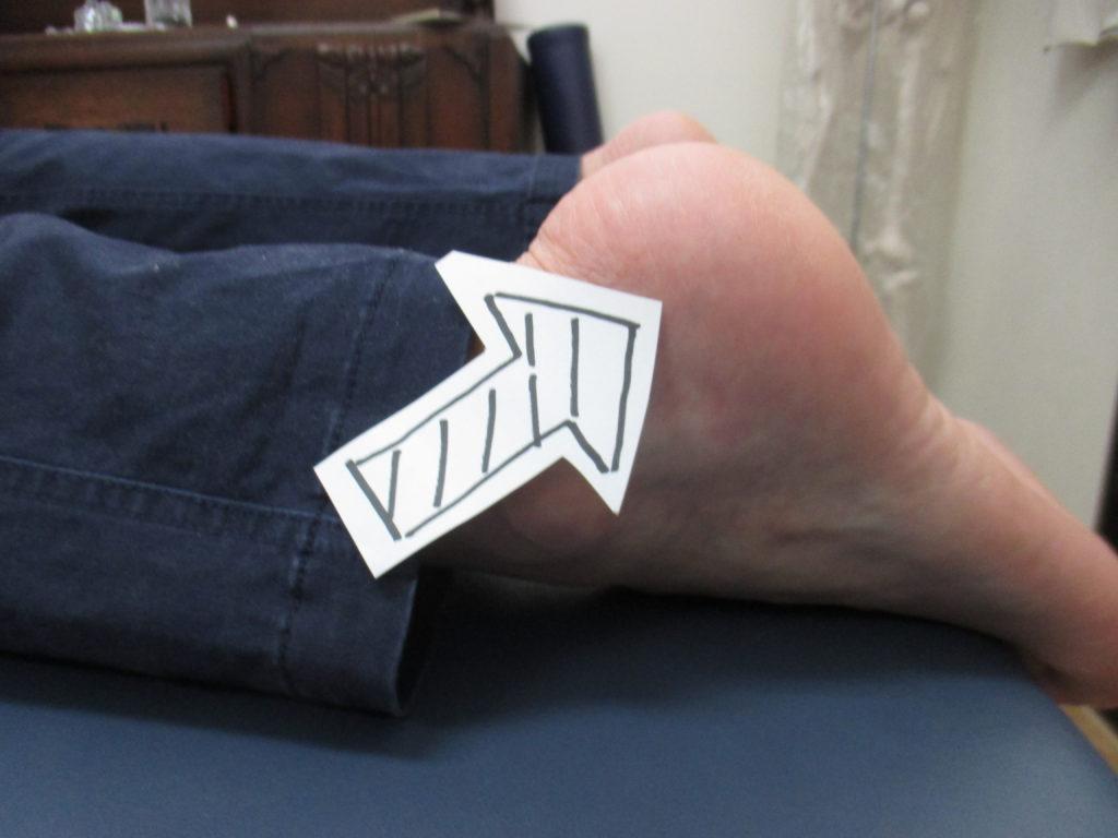踵の痛みとハムストリングス