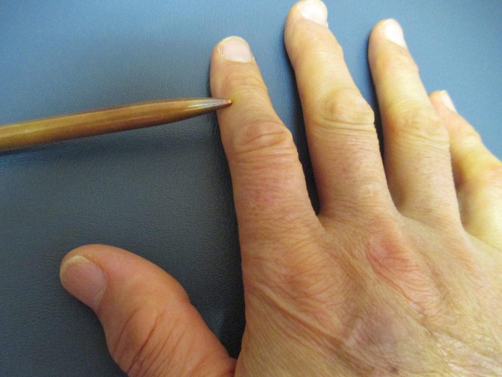 人指し指のしびれ
