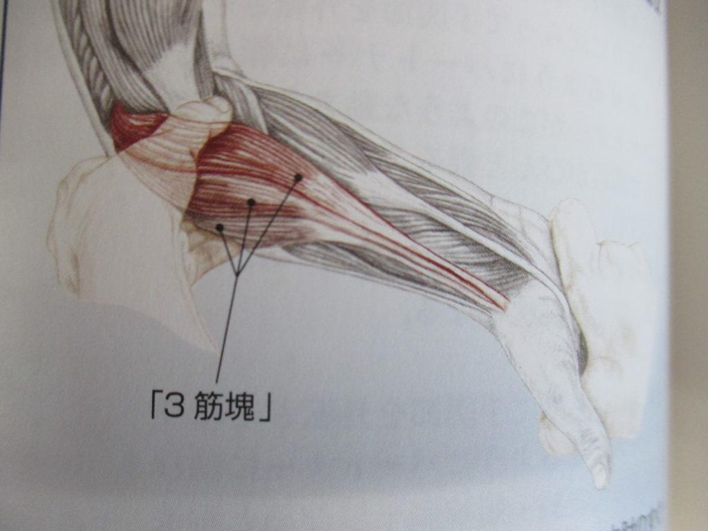ドケルバン病と前腕の伸筋群